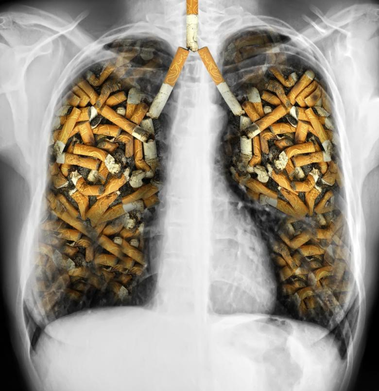 smoking lung cancer essay